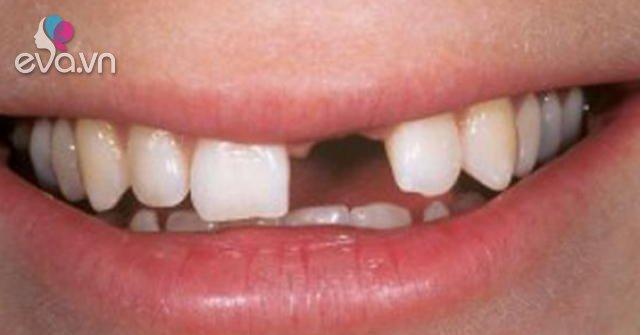 Cô gái 28 tuổi mất hoàn toàn hàm răng trên, thủ phạm là căn bệnh nhiều người cũng mắc