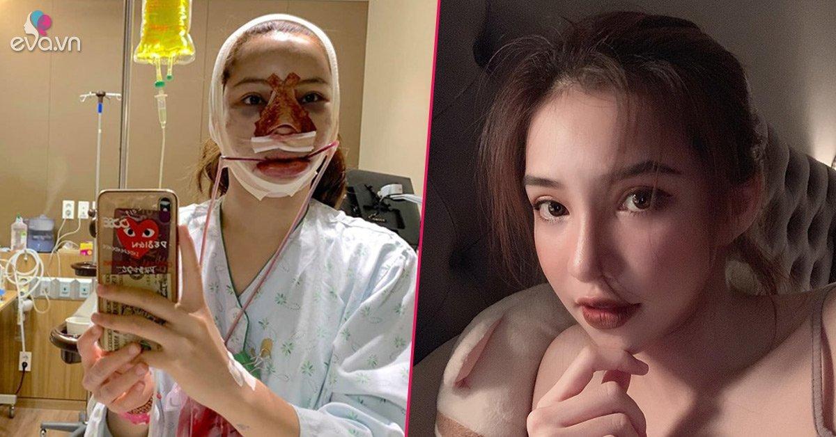PTTM cùng lúc 5 bộ phận, gương mặt mới của Lưu Đê Ly khiến ai cũng bất ngờ
