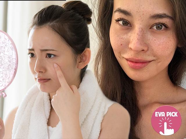6 dấu hiệu làn da đang dần xấu đi, nàng biết càng sớm chữa càng hiệu quả