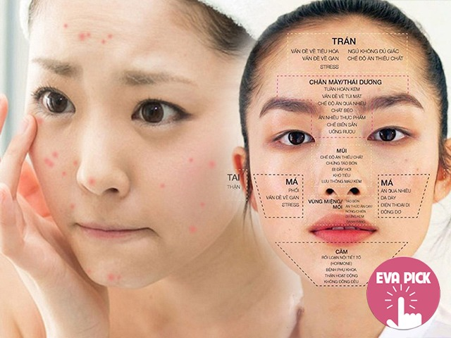 6 vị trí mụn mọc thường gặp trên gương mặt nói gì về tình trạng cơ thể bạn?