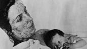 Những đại dịch kinh hoàng nhất trong lịch sử nhân loại trước đại dịch Covid-19