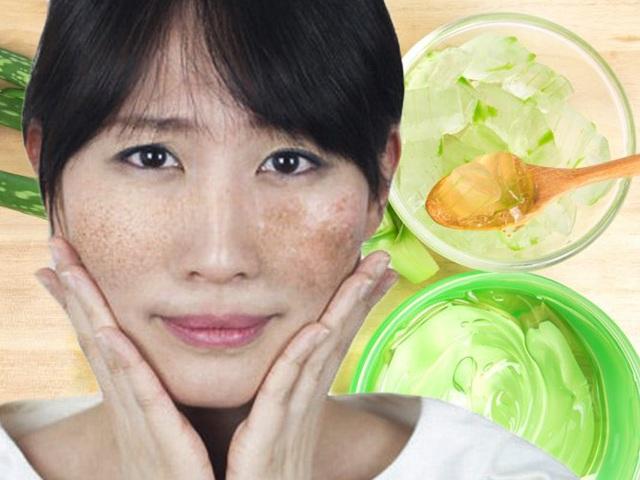 Da mặt láng o không tì vết với 4 cách trị tàn nhang bằng nha đam