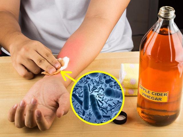 Bạn đã biết cách chăm sóc da khi mùa mưa kéo dài liên tục chưa? - 6