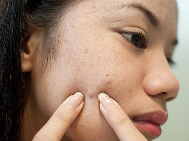 Biết được lí do da mặt sẹo rỗ kém sang, bạn sẽ không bao giờ dám nặn mụn nữa - 4