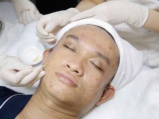 Tuyệt đối không được làm những điều sau, da mặt sẽ xấu đi vì sẹo rỗ - 3