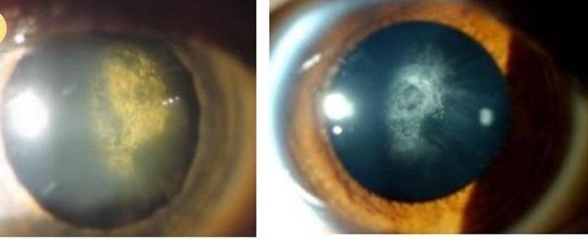 Vào viện vì mắt mờ dần với lọ thuốc nhỏ mắt, bác sĩ chỉ sai lầm vẫn dùng hàng ngày - 1