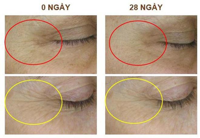 Nature Queen ứng dụng AH8 - thành tựu giải Nobel thế giới trong việc giảm nhăn, trẻ hóa da - 2