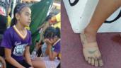 Bé gái quấn băng vào chân giả làm giày hiệu vẫn đoạt 3 huy chương vàng giờ ra sao?