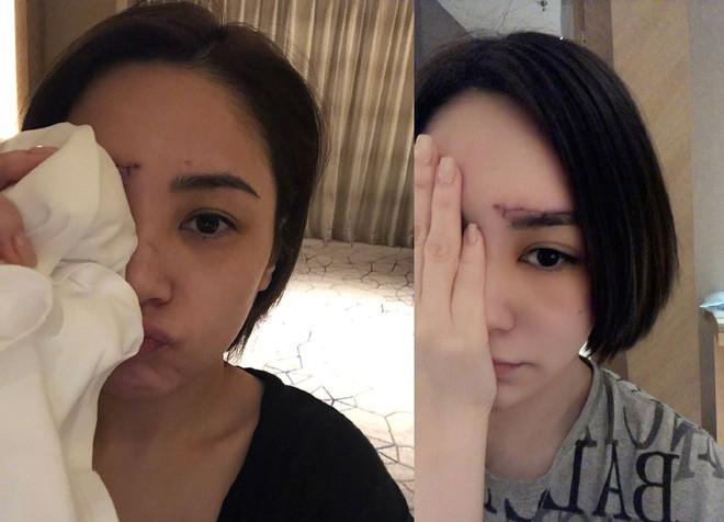 Ngôi sao 24/7: Chung Hân Đồng phải khâu hơn 60 mũi trên mặt, vết sẹo dài trông đáng sợ - 1