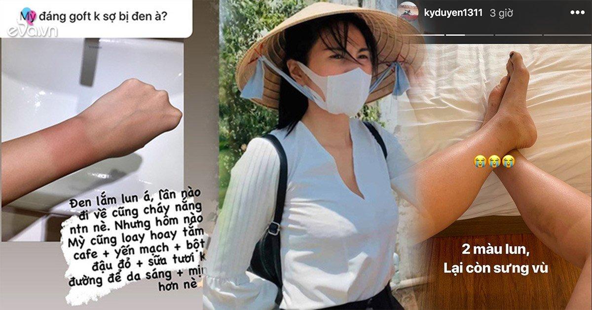 Sao Việt cháy nắng sau mùa hè: loạt Hoa hậu da hai màu, Thuỷ Tiên kêu trời vì hậu quả