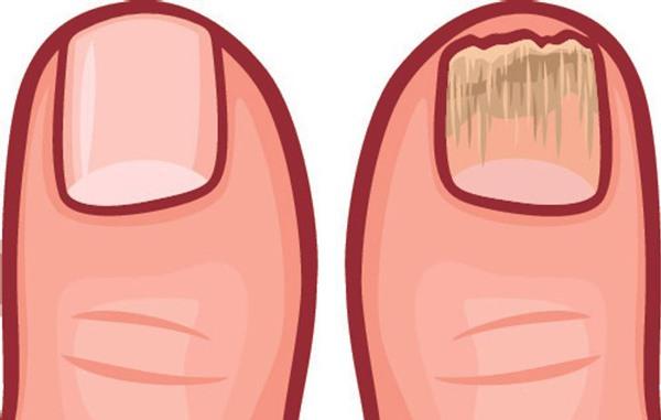 10 dấu hiệu cho thấy cơ thể bạn đang ngập trong độc tố cần thải độc ngay - 10
