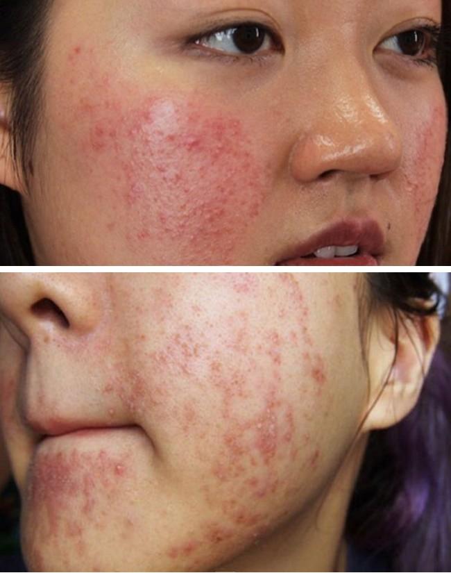 Rẻ-đẹp-dễ: Thực hư loại nước xông thải độc da bị nhiễm corticoid, sao Việt nhiều người áp dụng - 1