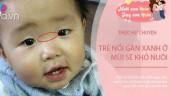 Thực hư chuyện trẻ nổi gân xanh ở mũi sẽ khó nuôi, khoa học giải thích