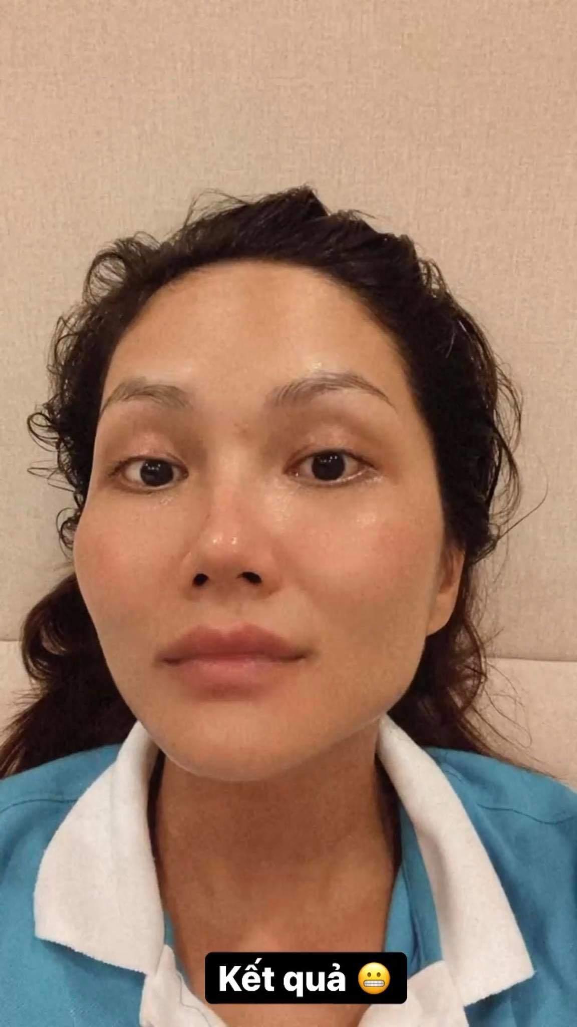Rẻ-Đẹp-Dễ: Một hoa hậu vừa chế ra công thức đắp mặt với cơm nguội, kết quả bất ngờ - 4