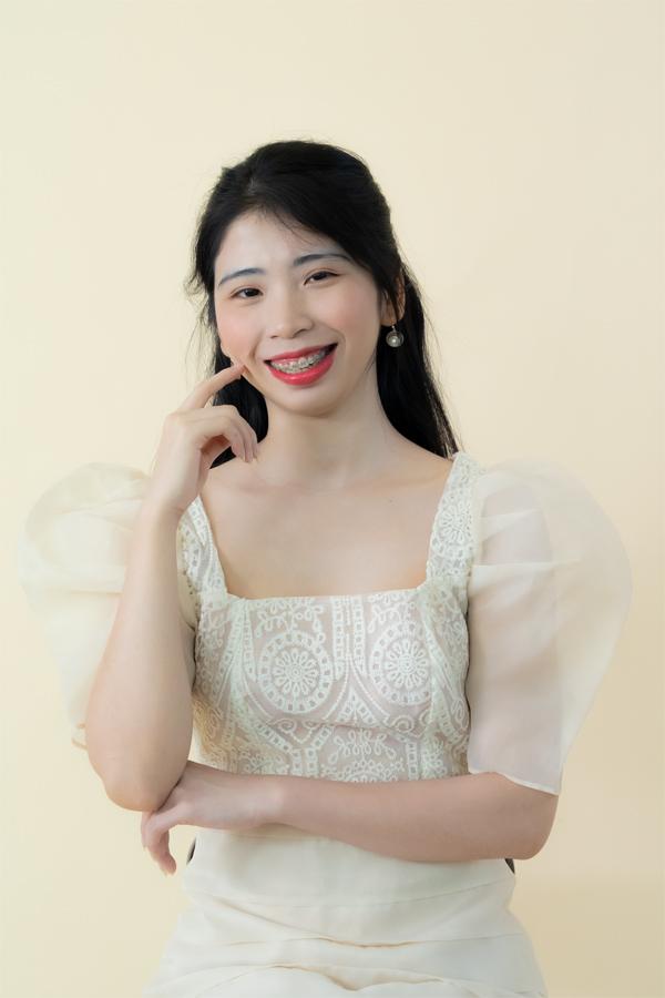 """Tự ti vì """"viêm cánh"""", fangirl bất ngờ được diễn viên Việt Anh mách khéo cách này - 2"""