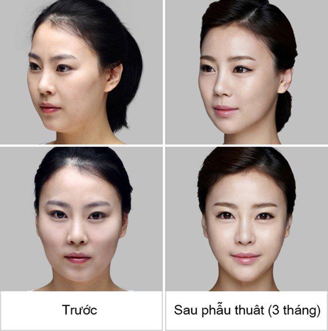 phuong phap ha xuong go ma moi thuc su la cuu tinh cua nhung nang co go ma cao! - 5