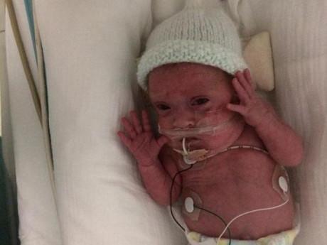 Chuyển dạ khi thai chưa được 24 tuần, người mẹ vỡ òa lúc nhìn thấy con trai