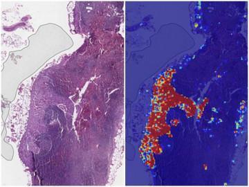 Trí tuệ nhân tạo của Google có thể phát hiện ung thư vú di căn hiệu quả hơn bác sĩ