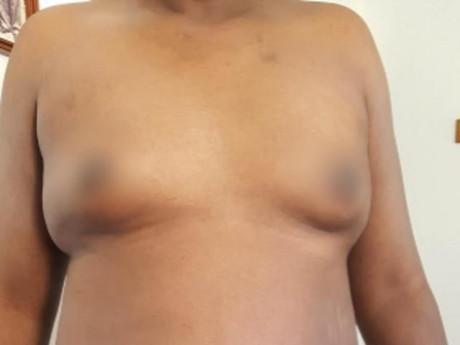 """Ngực bỗng phát triển như phụ nữ, đi khám ngỡ ngàng vì """"cậu nhỏ"""" cũng biến mất luôn"""