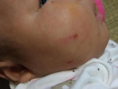 Đứa trẻ 1 tháng tuổi vài ngày không lành vết xước vì sai lầm của mẹ khi quá kiêng khem
