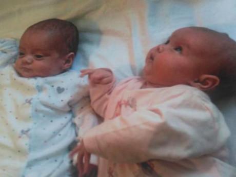 Cặp chị em sinh đôi từng gây sửng sốt vì chào đời cách nhau 87 ngày giờ ra sao?