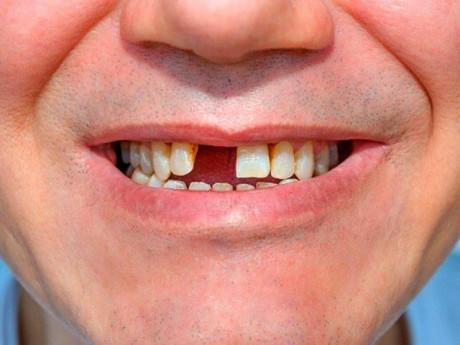 Trồng răng Implant cho người bị bệnh nha chu tại Nha Khoa Đông Nam