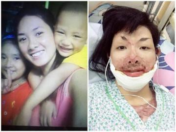 Cuộc sống mới của mẹ 9X từng bị chồng tẩm xăng đốt, hơn 2 năm chưa dám nhìn mặt con