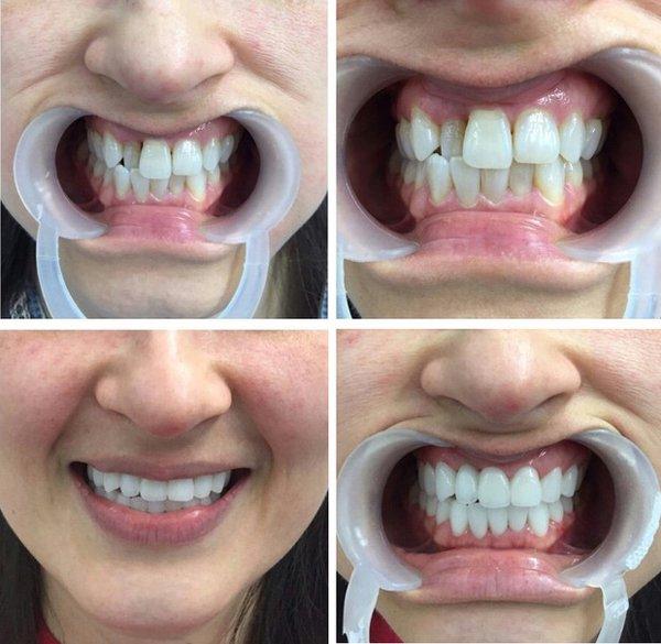 Những điều bạn nhất định phải biết trước khi tiến hành bọc răng sứ