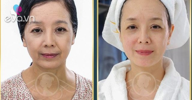 Làm chậm quá trình lão hóa da: Tưởng không dễ mà dễ không tưởng