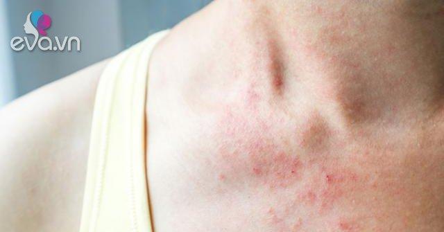 Nguyên nhân và cách điều trị viêm da dị ứng-Sức khỏe