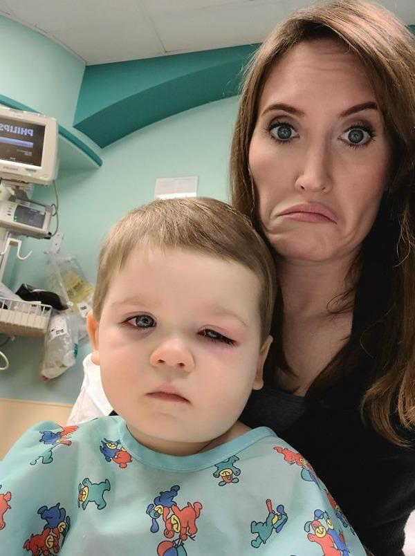 Bé trai mắt đỏ như máu, suýt mù vì thứ nhiều cha mẹ cho con dùng khi tắm - 1