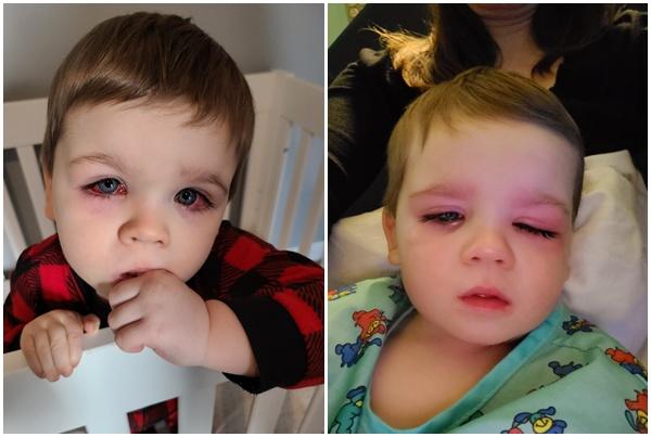 Bé trai mắt đỏ như máu, suýt mù vì thứ nhiều cha mẹ cho con dùng khi tắm - 3