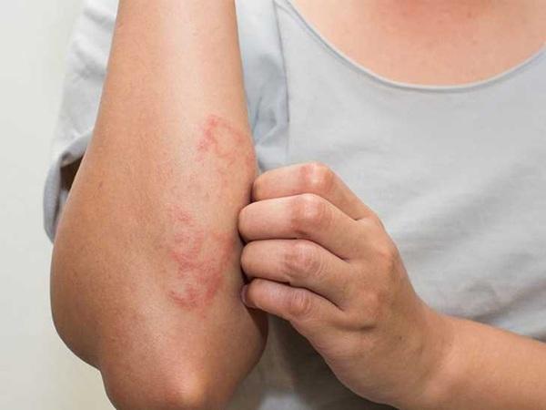 Những bộ phận trên cơ thể bị ngứa nên đi khám sớm, cẩn thận có thể là ung thư - 3