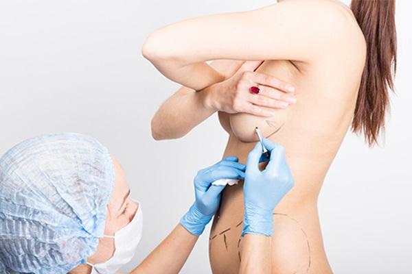 Nữ bệnh nhân bị vỡ túi ngực 60 triệu phải phẫu thuật khẩn cấp vì silicon chảy tràn - 6