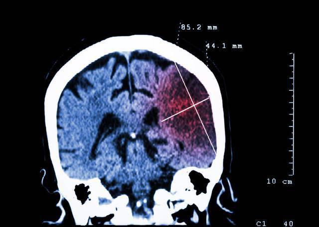 Chỉ cần một tờ giấy trắng mất 10 giây để biết bạn có nguy cơ bị đột quỵ hay không - 1