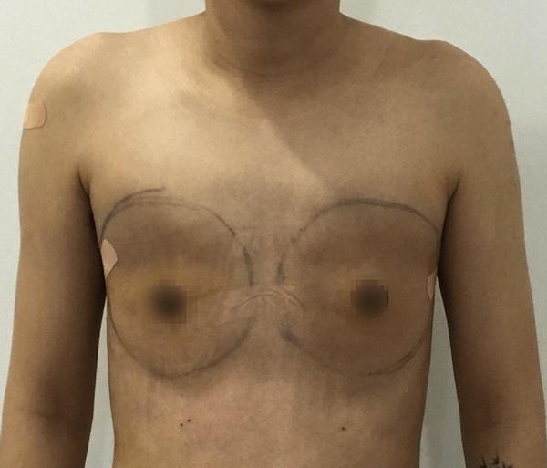 Hậu cắt ngực, bạn trai chuyển giới của Miko Lan Trinh đẹp như nam thần - 11