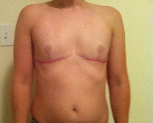 Hậu cắt ngực, bạn trai chuyển giới của Miko Lan Trinh đẹp như nam thần - 13