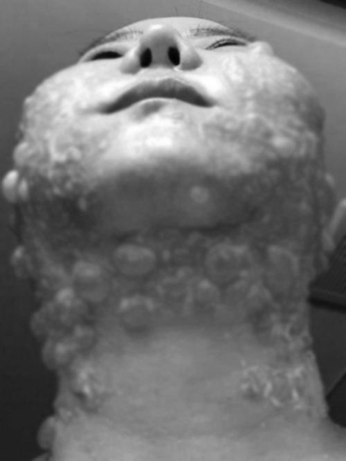Đầu tư tiền làm trẻ hóa căng da, người phụ nữ bị bỏng rộp hết khuôn mặt - 5