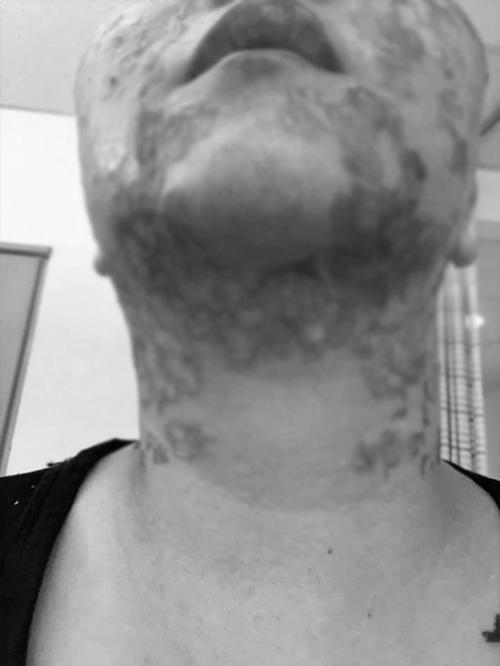 Đầu tư tiền làm trẻ hóa căng da, người phụ nữ bị bỏng rộp hết khuôn mặt - 6
