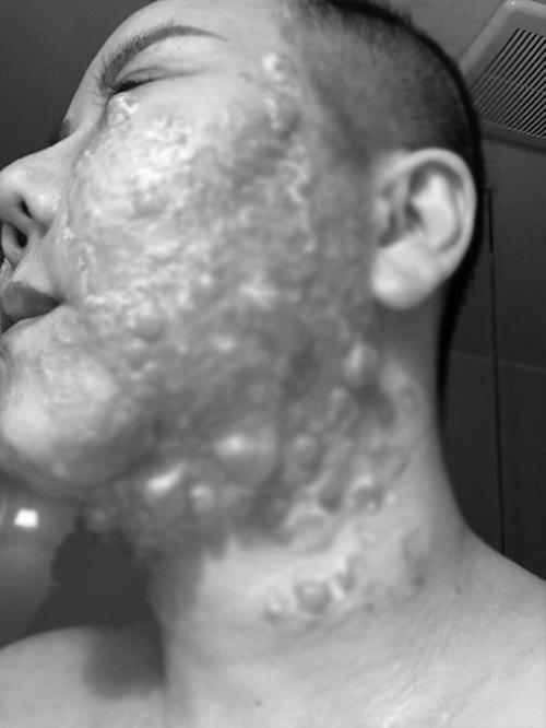 Đầu tư tiền làm trẻ hóa căng da, người phụ nữ bị bỏng rộp hết khuôn mặt - 3