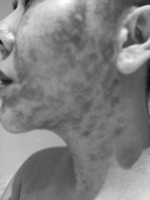 Đầu tư tiền làm trẻ hóa căng da, người phụ nữ bị bỏng rộp hết khuôn mặt - 9