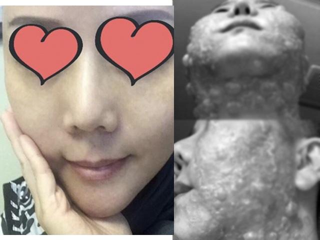 Đầu tư tiền làm trẻ hóa căng da, người phụ nữ bị bỏng rộp hết khuôn mặt