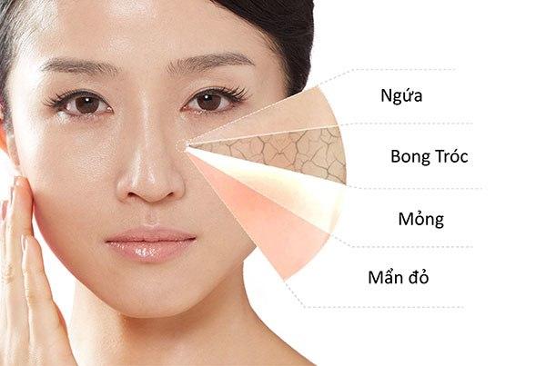 Tạm biệt lớp da bong tróc kém sắc với các cách trị da mặt khô sần đơn giản này - 1