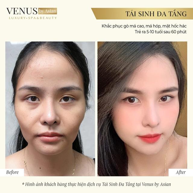 Lên đời nhan sắc nhờ giải pháp trẻ hóa khuôn mặt Tái sinh đa tầng - 3