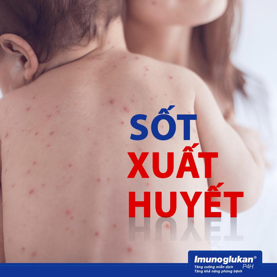 5 bệnh giao mùa thường gặp ở trẻ và cách phòng tránh - 2