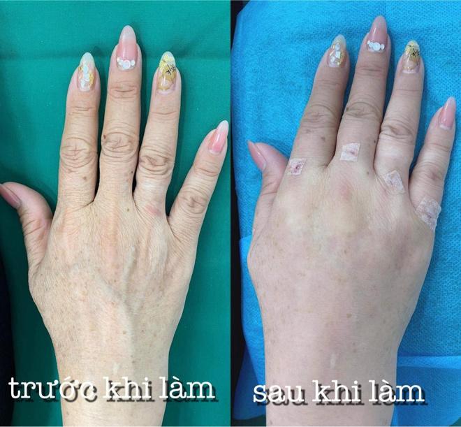 Bật mí bí mật giúp đôi tay không còn gân guốc, khô sần - 5