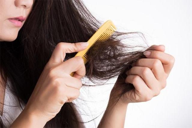 Nguyên nhân gây rụng tóc ở nữ và bí quyết giúp mái tóc chắc khỏe, chẳng lo gãy rụng - 1