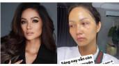 H'Hen Niê xuất hiện với gương mặt bầm dập, skincare kiểu gì mà hỏng luôn mặt tiền